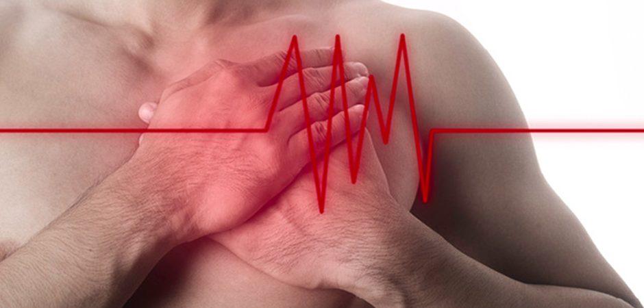 5 preguntas que siempre te has hecho sobre el infarto